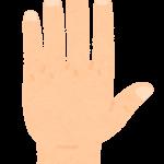 手の甲シミ【対策を間違えると濃くなる事も】